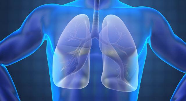 Cuidados respiratorios